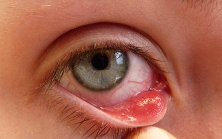 Effective Hints On How To Get Rid Of A Stye