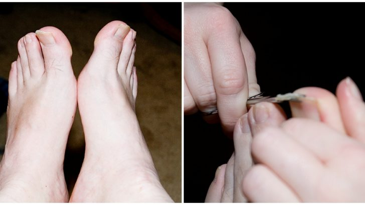 Thick Toenails: Causes & Treatment (Home Remedies)