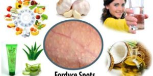 Fordyce Spots: Causes, Symptoms And Treatment
