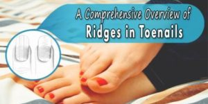A Comprehensive Overview of Ridges in Toenails