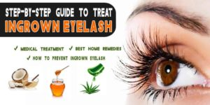 Step-by-Step Guide To Treating Ingrown Eyelash