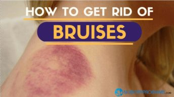 How To Get Rid of Bruises Fast?
