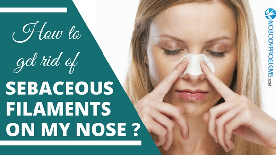 How to Get Rid of Sebaceous Filaments on Nose?
