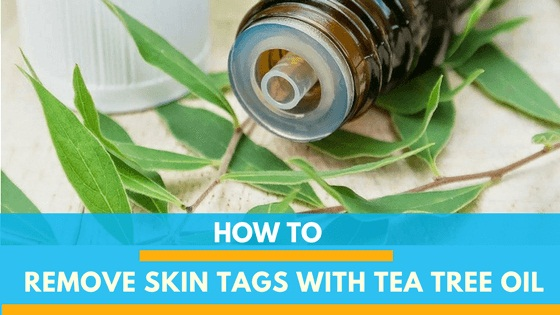 Tea Tree Oil For Skin Tags Can Get Results in 3-5 Weeks!