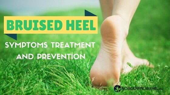 Bruised Heel: Symptoms, Treatment and Prevention