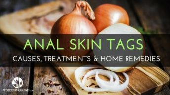 Anal Skin Tags: Causes, Treatments & Home Remedies