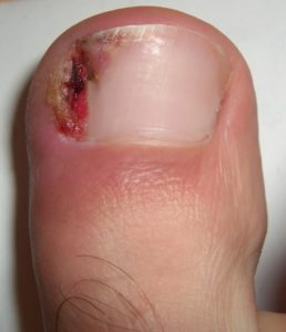 How to get rid of an ingrown toenail at home