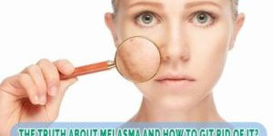 The Truth About Melasma and How To Get Rid Of It ?