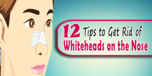 12 Tips to Get Rid of Whiteheads on Nose