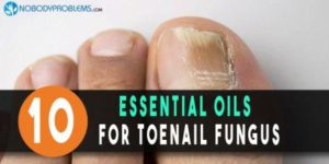 10 Essential Oils For Toenail Fungus