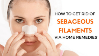 How To Get Rid of Sebaceous Filaments Via Home Remedies?