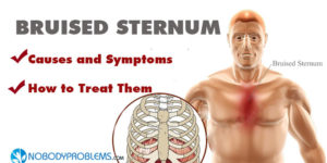 Bruised Sternum: Causes and How to Treat Them
