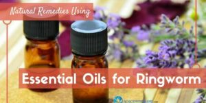 Natural Remedies Using Essential Oils for Ringworm