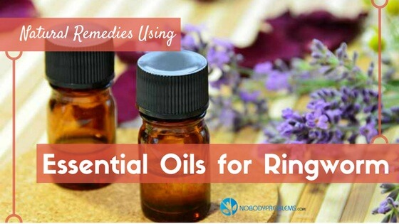 Essential Oils for Ringworm