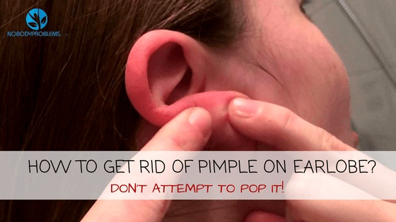 How To Get Rid of Pimple On Earlobe? Don't Attempt To Pop It!